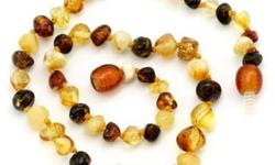 Beskrywing Amber Teething necklaces: Many parents are